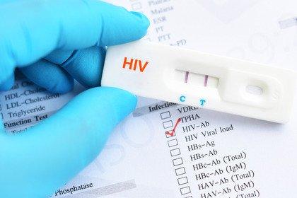 HIV: un uomo «guarisce» grazie alle cure anticancro