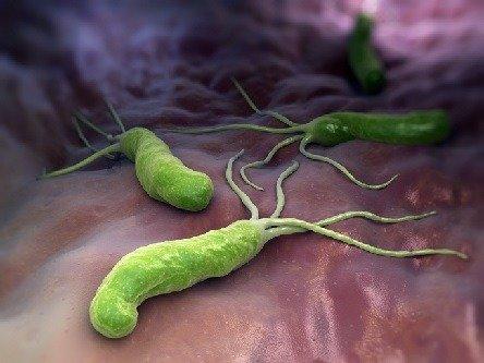 Helicobacter pylori: c'è un'alternativa agli antibiotici?