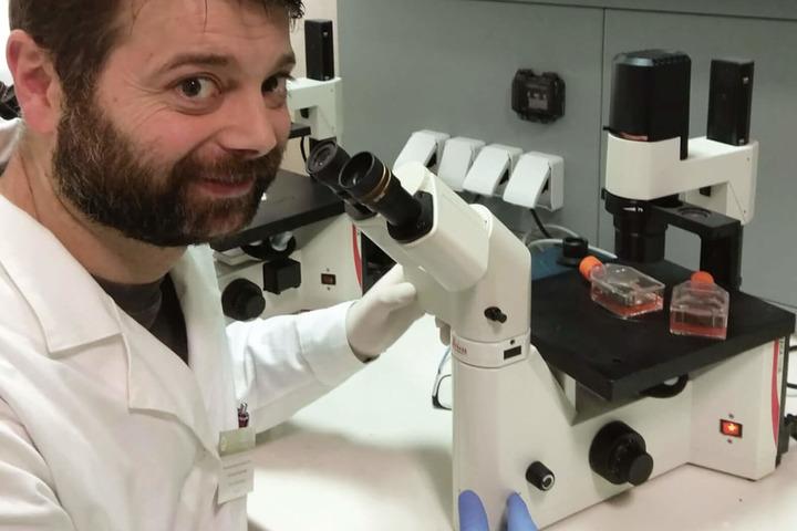 Malattie del sangue: una biopsia liquida per individuare le recidive