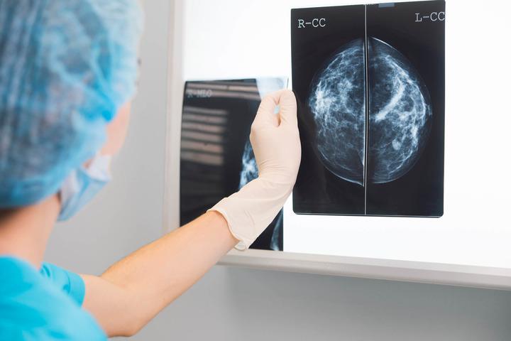 Tumore al seno: la chirurgia italiana è di eccellenza