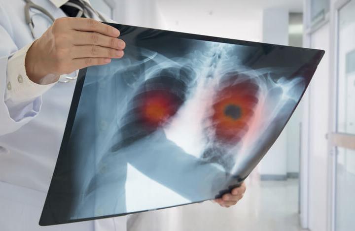 Tumore del polmone: quando si ammala chi non ha mai fumato