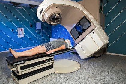 Mesotelioma pleurico: la radioterapia aumenta la sopravvivenza