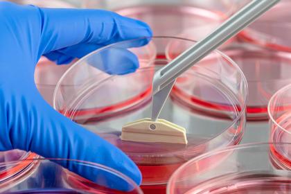 Dieta ipoglicemica e metformina nella lotta al cancro