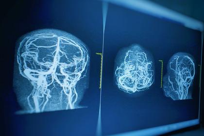Ictus: ridurre il danno trasportando ossigeno al cervello