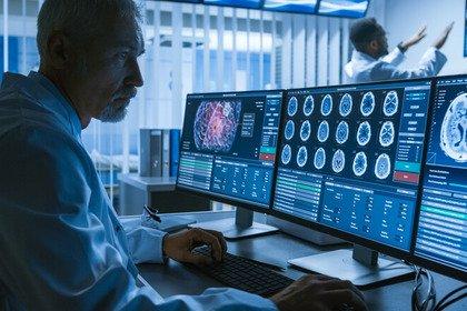 Melanoma, metastasi al cervello: come trattarle?