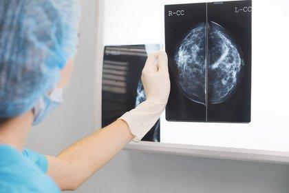 Tumore al seno metastatico: ribociclib aumenta l'aspettativa di vita