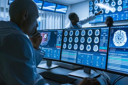 Gliomi maligni: contro le recidive nuove speranze dal carboplatino