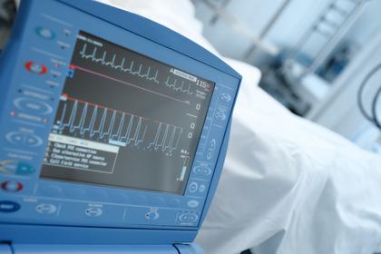 Il microbioma alterato potrebbe essere un fattore di rischio per l'infarto