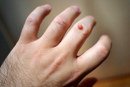 Che cosa sono i «porri» che compaiono sulla pelle?