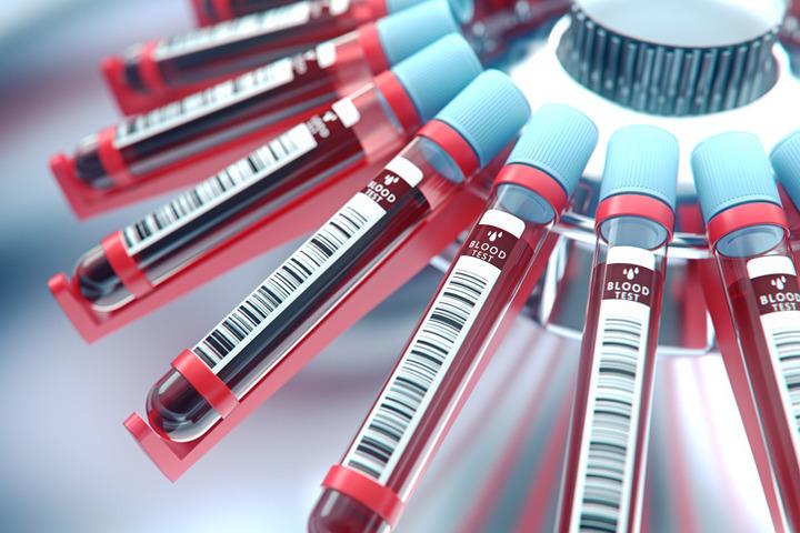 Tumore del polmone: la cura si fa personalizzata con la biopsia liquida