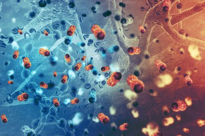 Terapie avanzate in oncologia: sogno o realtà?