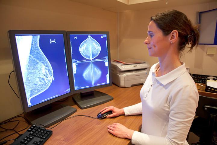 Tumore al seno: e se la mammografia sbaglia?