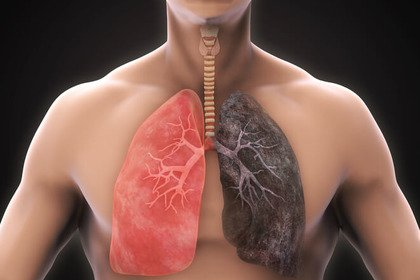 Così i polmoni si «rigenerano» dopo aver smesso di fumare