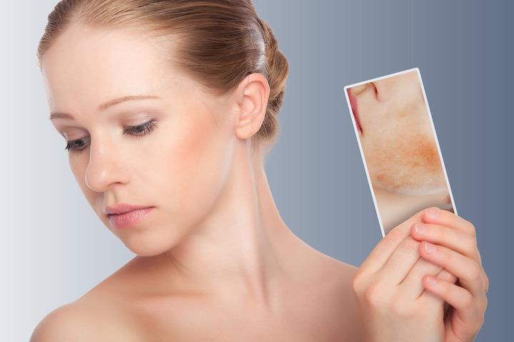 Come si cura il lupus?