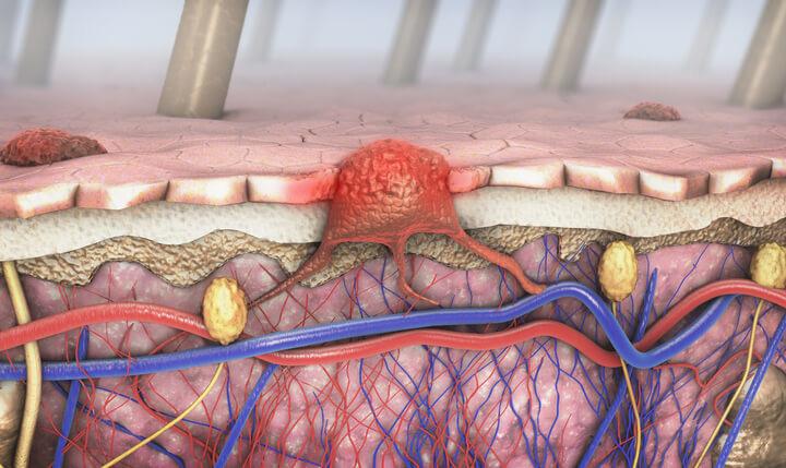 In quali organi tende a diffondersi il melanoma?