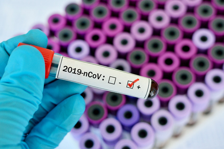 Coronavirus: serve contenere i focolai e preparare gli ospedali
