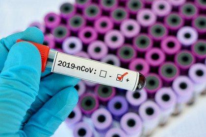 Coronavirus: obiettivo contenimento dei focolai e preparazione degli ospedali