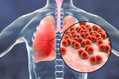 Essere vaccinati per lo pneumococco protegge dal Coronavirus?