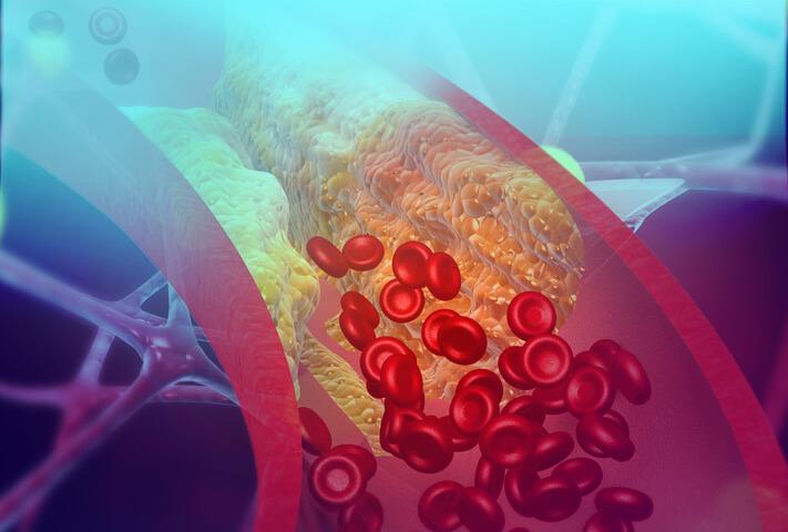 Due iniezioni all'anno per far calare il colesterolo «cattivo»