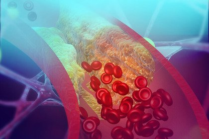 Due o tre iniezioni all'anno per far calare il colesterolo «cattivo»