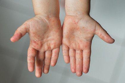 Malattia di Kawasaki: col Covid-19 casi aumentati di 30 volte