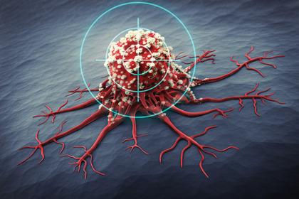 Curare il cancro: a che punto siamo?