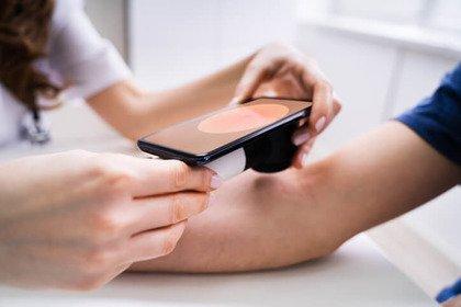 Tumori delle pelle: per la diagnosi meglio non fidarsi (solo) delle «app»