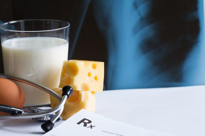 Menopausa: latte e formaggi (da soli) non proteggono le ossa