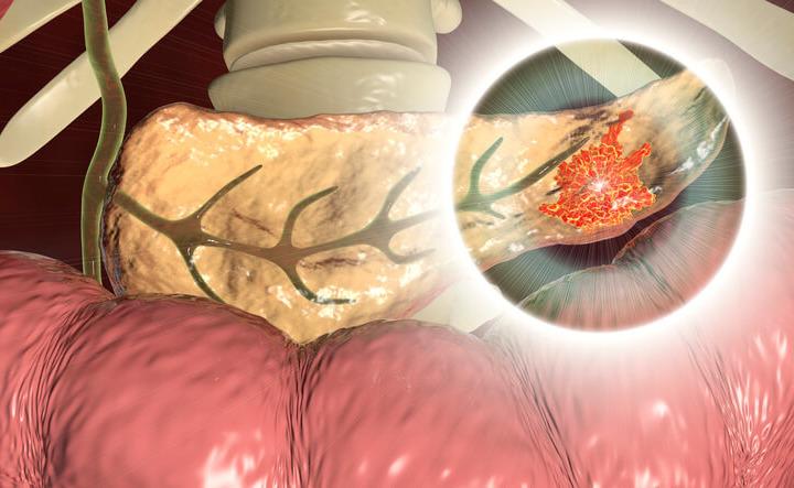 Tumore del pancreas: troppi centri operatori con poca esperienza