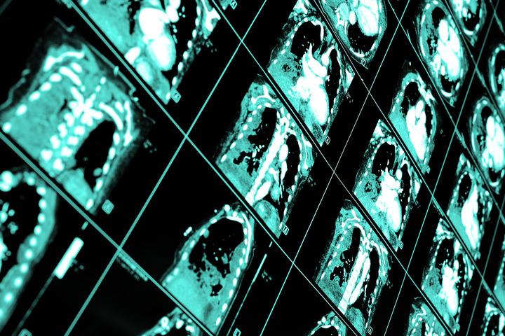 Tumore del polmone: si lavora per uno screening sostenibile