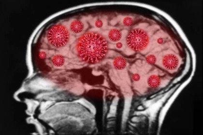 «Neurocovid»: quando il coronavirus attacca il cervello