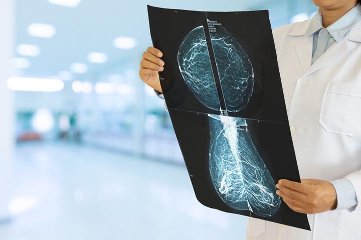 Tumore al seno HR+ HER2-: cure sempre più mirate