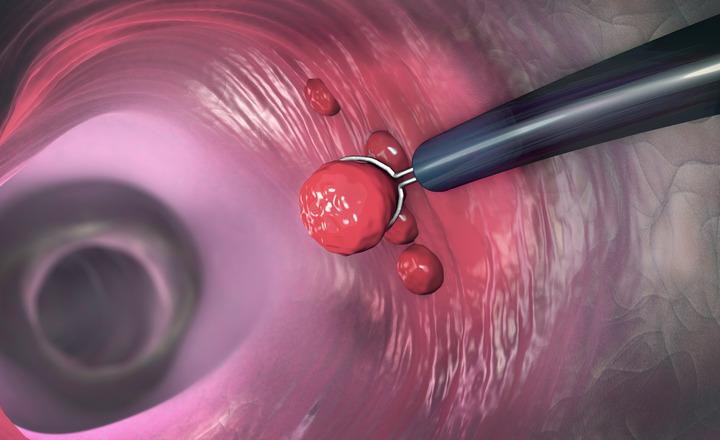 Covid-19 e tumore del colon-retto: non rimandare lo screening