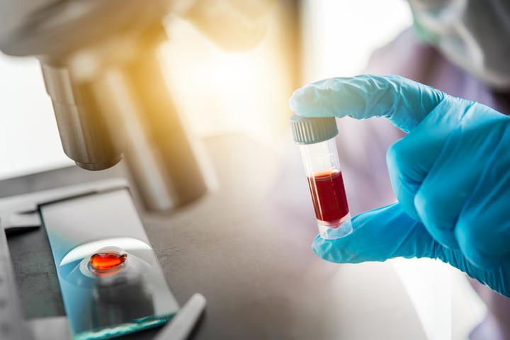 Covid-19: dosare PTX3 per capire l'evoluzione della malattia