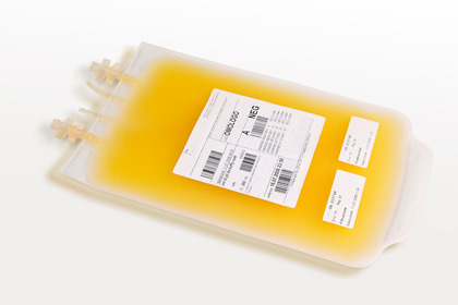 Covid-19: il plasma non funziona nei pazienti più gravi