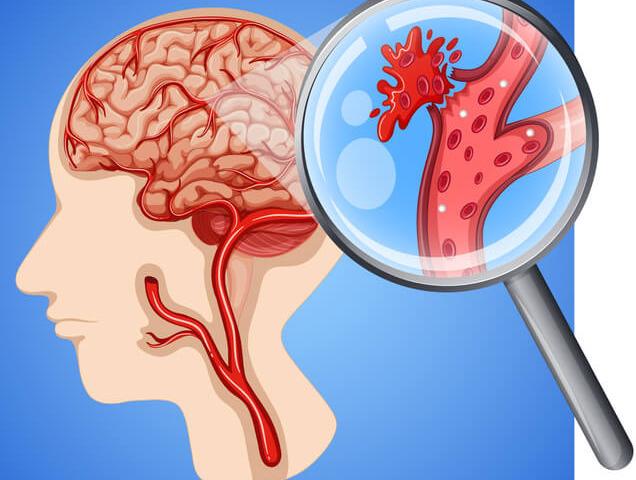 Ictus cerebrale: la gravità si può dedurre da una goccia di sangue