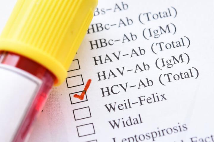 Epatite C: screening esteso per individuare gli asintomatici