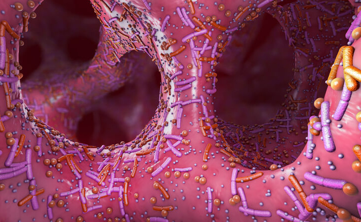 Immunoterapia: potenziarne l'effetto con il trapianto di microbiota