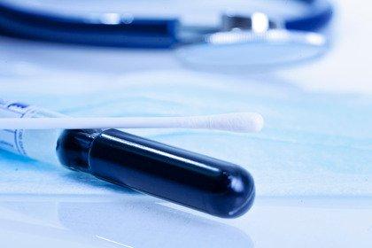Pap test e Hpv test: l'effetto Covid frena ma non ferma gli screening