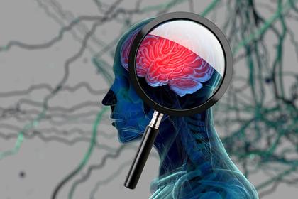 Un esame del sangue per scoprire l'Alzheimer vent'anni prima?