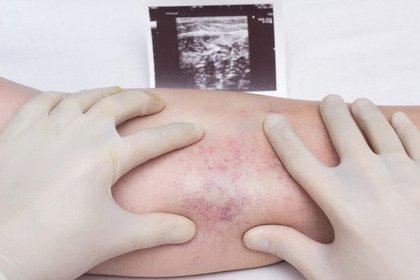 Vaccino AstraZeneca e rischio trombosi: facciamo chiarezza