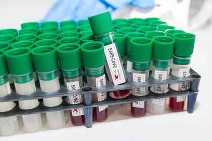 Covid-19: l'immunità dura almeno 9 mesi
