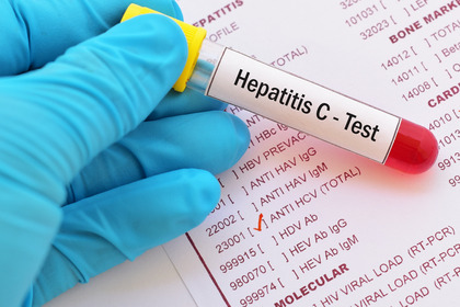 Epatite C: eradicarla con la medicina territoriale