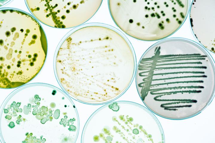 Immunoterapia: prevedere l'efficacia analizzando il microbioma