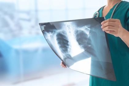 Nodulo polmonare: che cos'è? Quando si interviene?