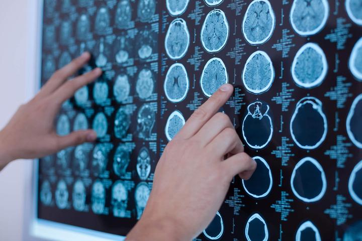 Tumori cerebrali: le staminali che rendono più aggressivi i glioblastomi