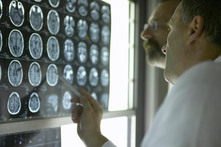 Parkinson e celiachia: quale legame fra intestino e cervello?