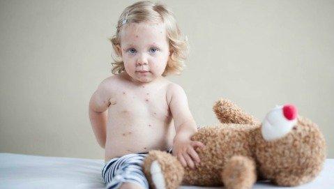 Ecco perchè il vaccino contro il morbillo ci protegge anche da altro