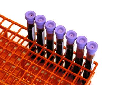 """Colesterolo """"cattivo"""" in menopausa: come controllarlo?"""