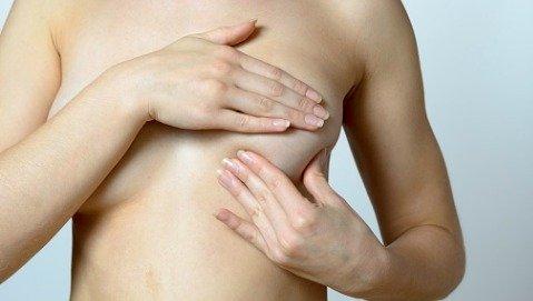 Quando è il caso di togliere un nodulo benigno al seno?